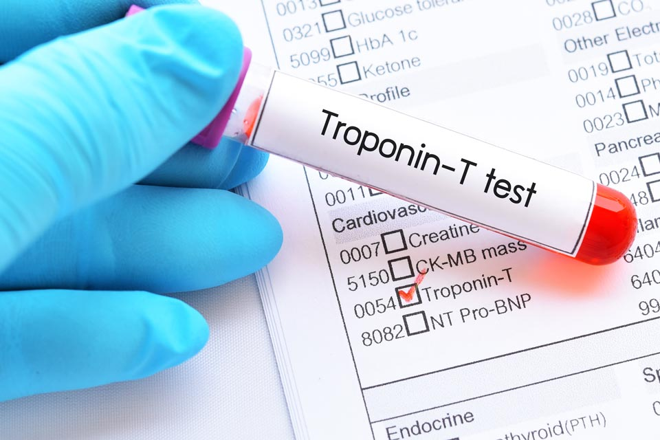 Biotin is known to interfere with certain lab tests, including a dangerous interference with tests for troponin.